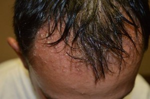 Rash on the Scalp