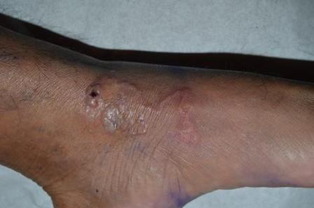 Creeping Eruptions Hookworm Walk In Medical Center Orlando
