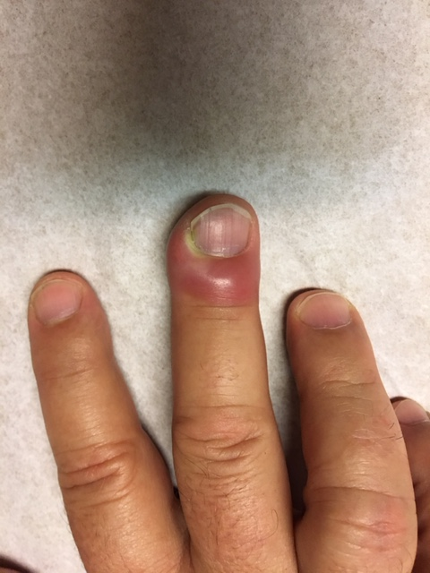 Infection of the nail of the Finger